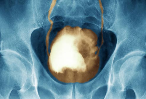 x-ray of cancerous bladder tumor